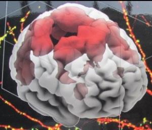 IMG_3169 cerveau douleur